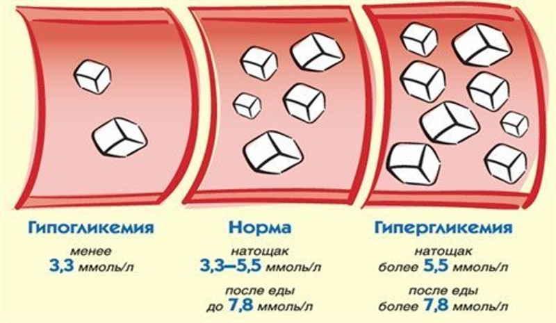 симптомы при повышенном холестерине в крови