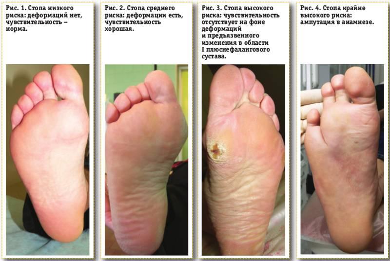 фактических данных стафилококк и стопы ног питание подсистем базовых