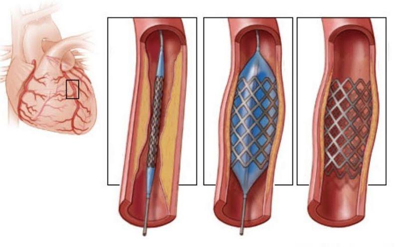 Инфаркт миокарда при сахарном диабете: особенности, симптомы, лечение