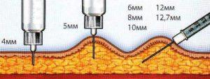 Инсулиновый шприц – устройство для подачи инсулина в организм