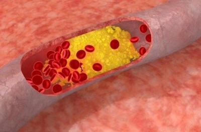 Зуд кожи при сахарном диабете у женщин: чешется в интимном месте, лечение