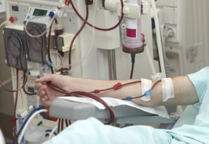 Диабетическая нефропатия: симптомы, лечение, стадии при диабете