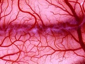 Ангиопатия нижних конечностей при сахарном диабете - лечение